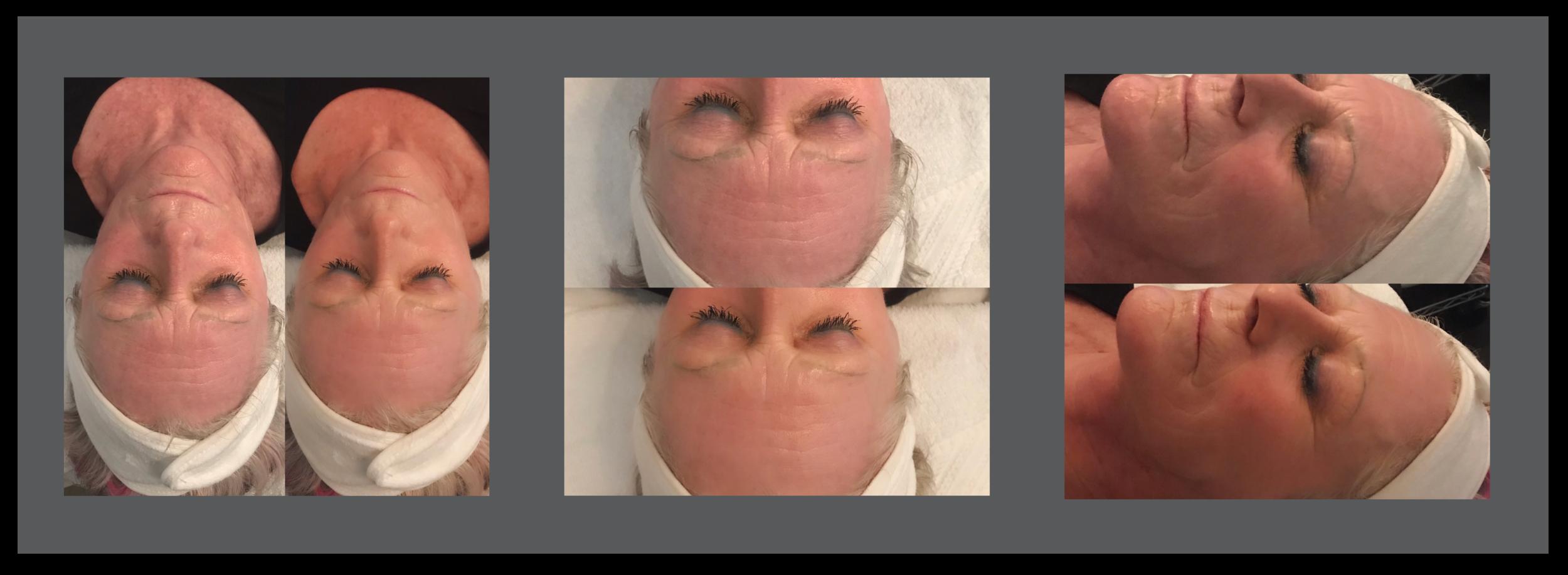 Cryoskin-Facial-VD.png