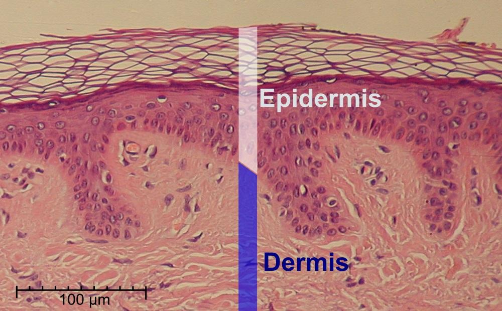 Figure 2. Epidermis and dermis (1)