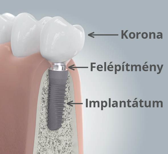 implantatum_fogbeultetes_magyarazo_kep.png