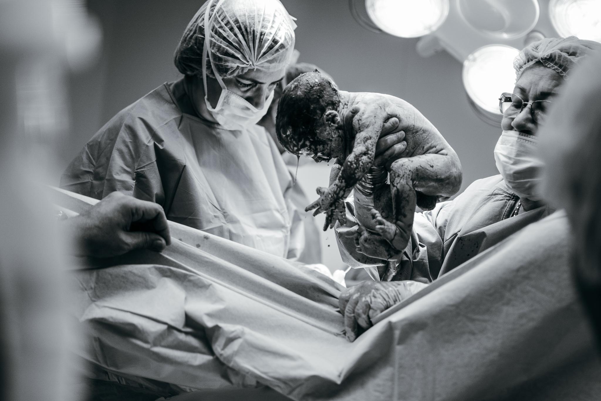 Lana Photographs Dubai Birth Photographer doctors delivering baby via csection inside operating room at Mediclinic City Hospital in Dubai
