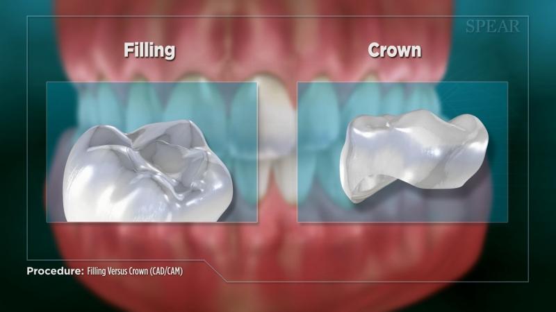 Crown vs. Filling