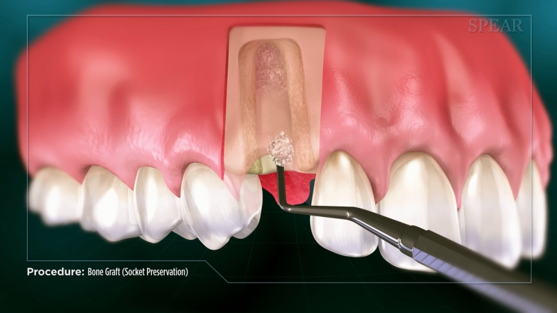 Socket Graft