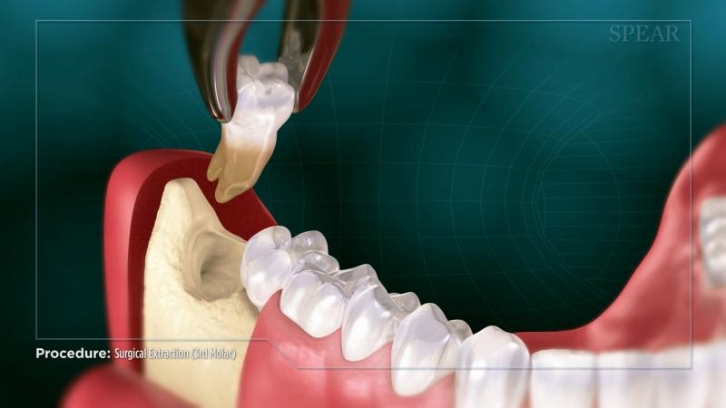 3rd Molar Removal