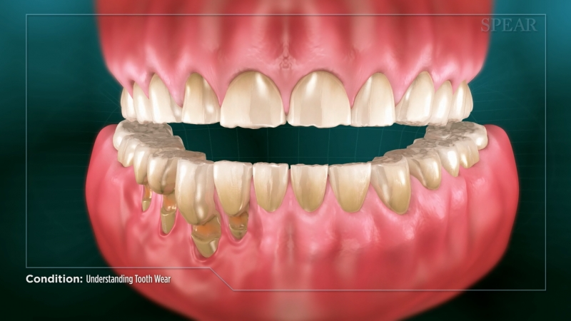 Tooth Wear (bruxism)
