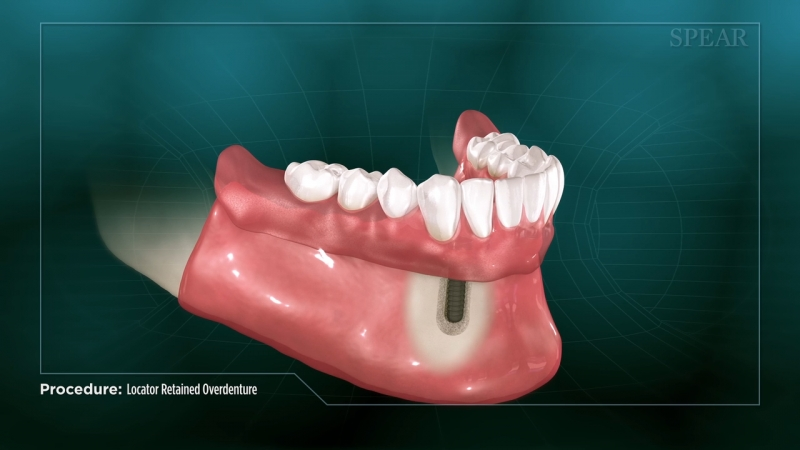 Implant Retained