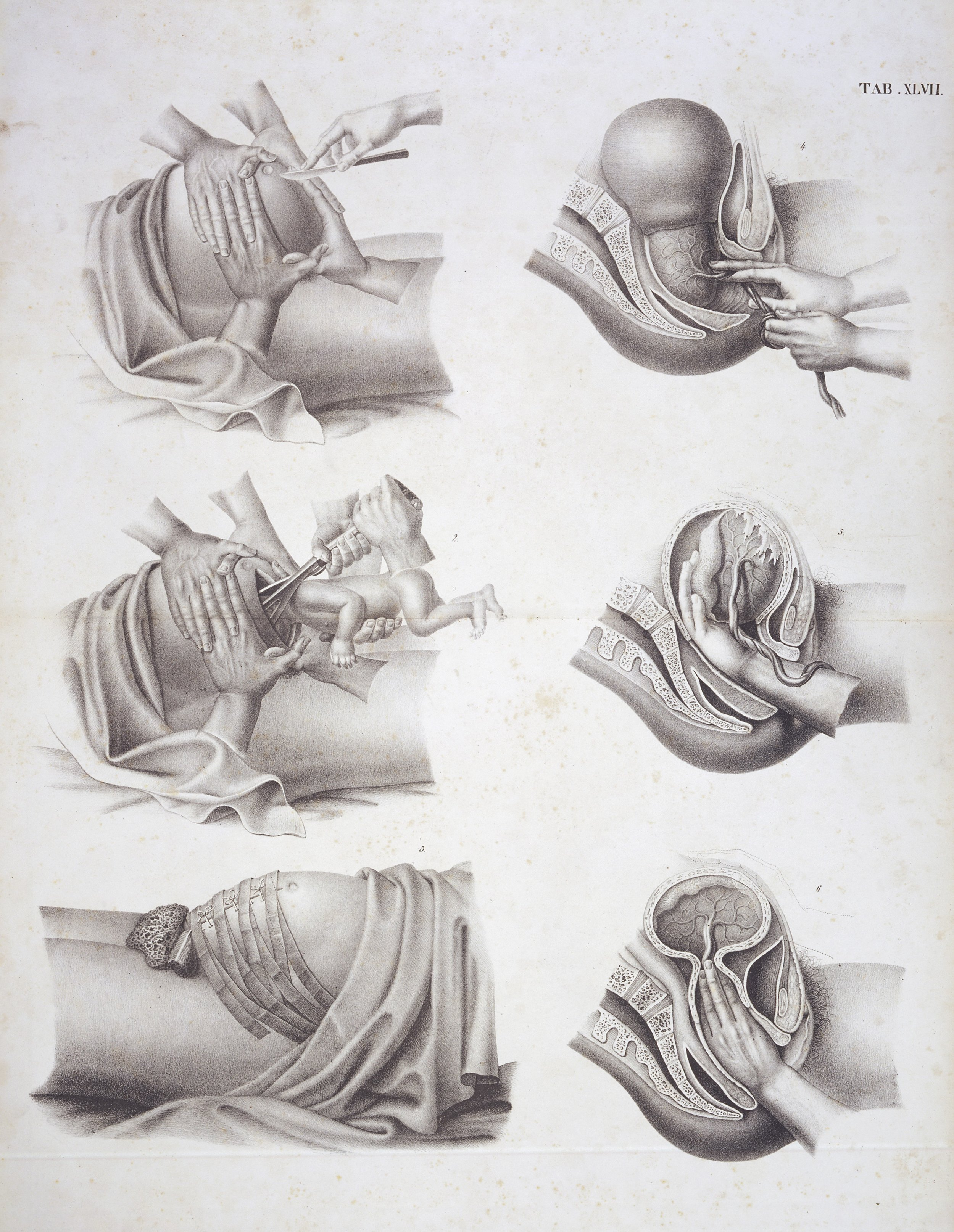 What do you do when you don't have time to review the full history of obstetrics? |  Wellcome Collection