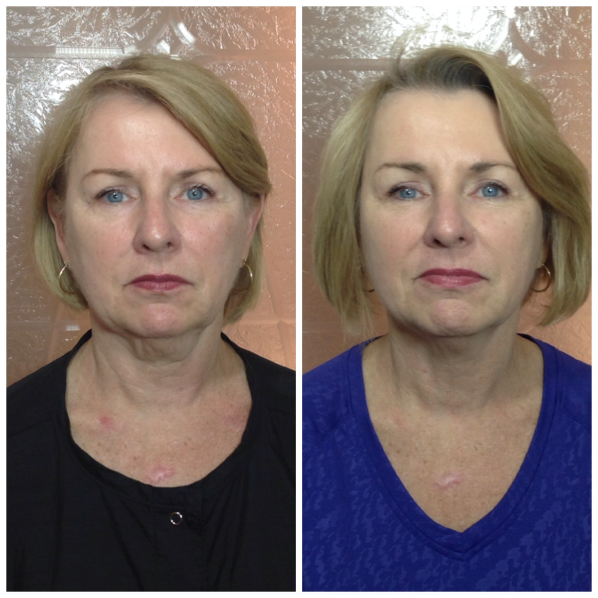 Results after only 3 Lift M6 Treatments!