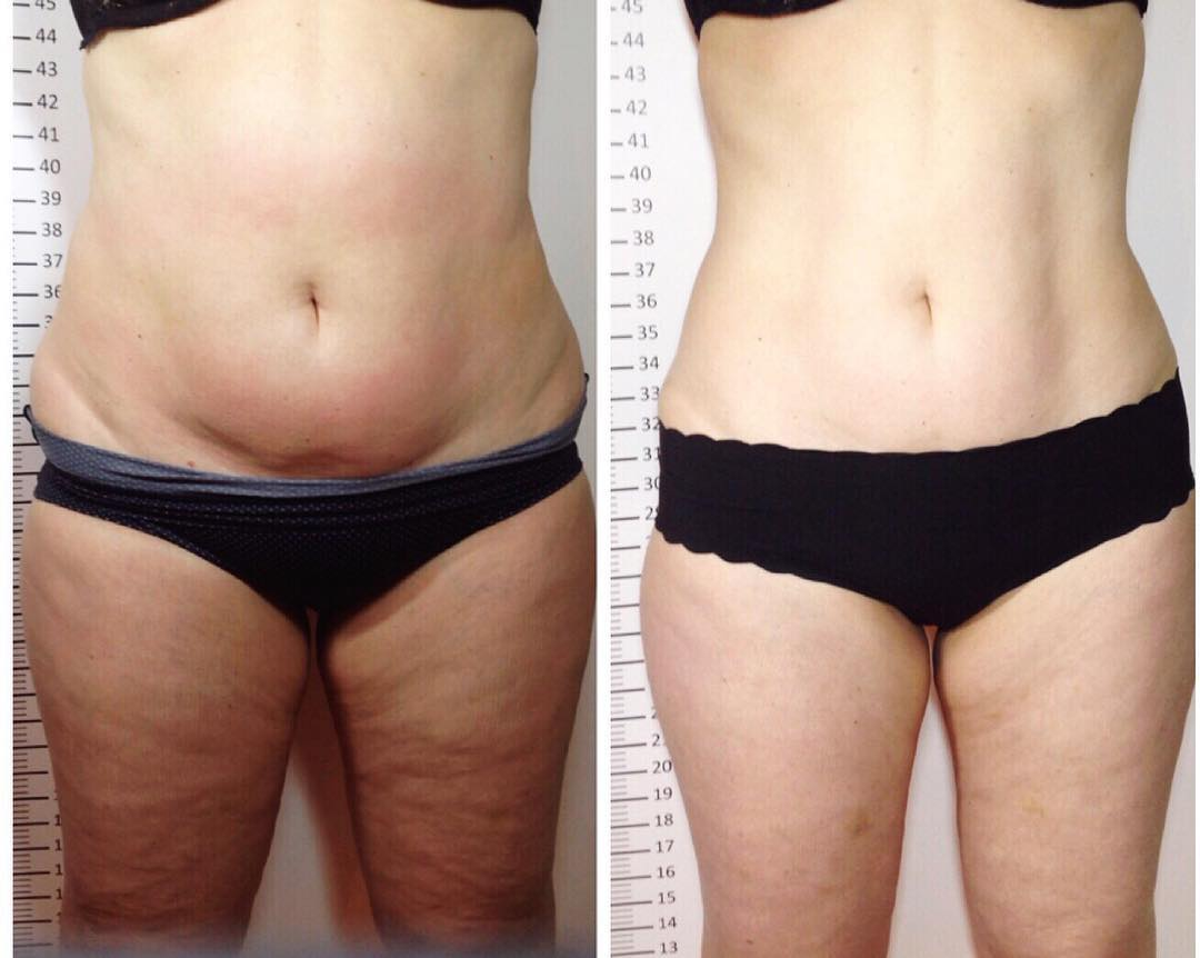 Astounding results combining LPG Integral with Inch-Loss Body Wraps!