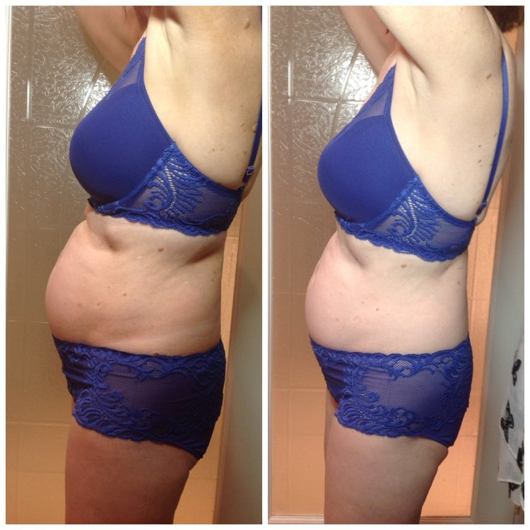 Combination of 6 LPG Integral Treatments and 6 Inch-Loss Body Wraps!
