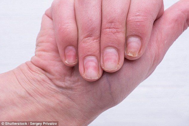 It's not the polish that weakens the nail, more it's the removal process, the nail expert explained (stock image)