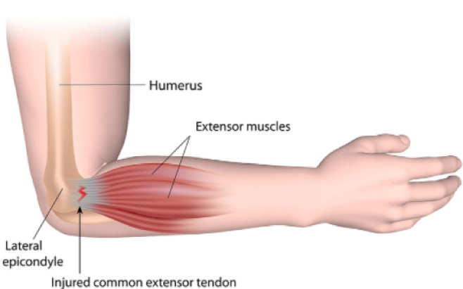 Tennis Elbow 1.png