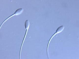 equine sperm.jpg
