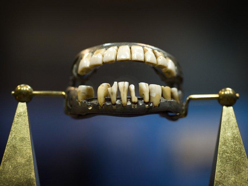 11_07-2014_washington_teeth.jpg__800x600_q85_crop