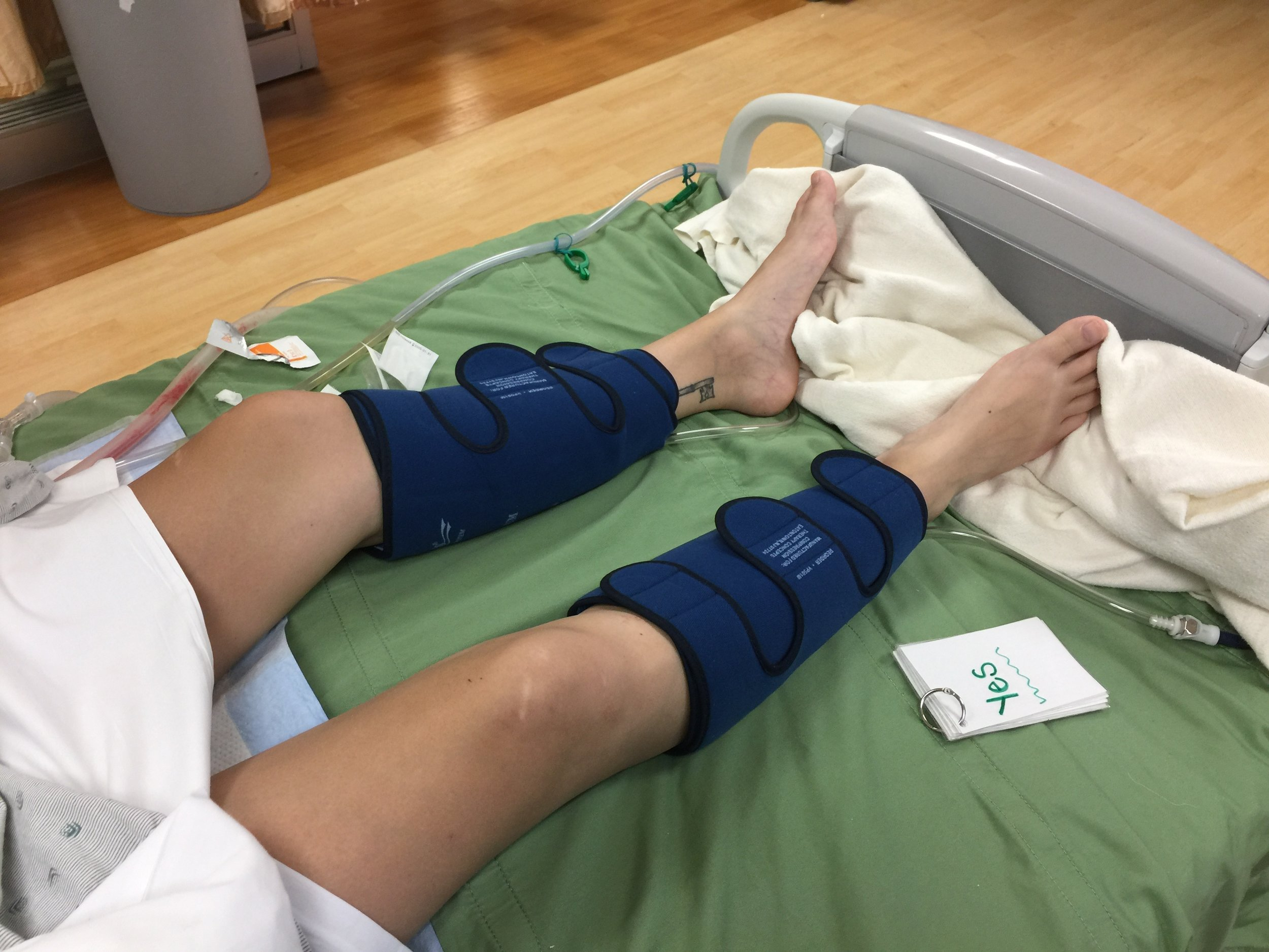 Leg compressions to help with swelling