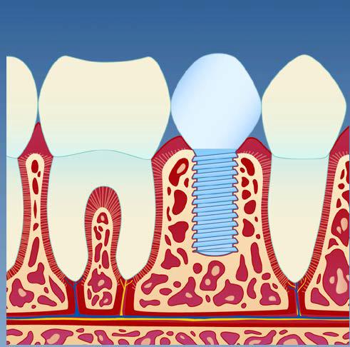 implantat5.png