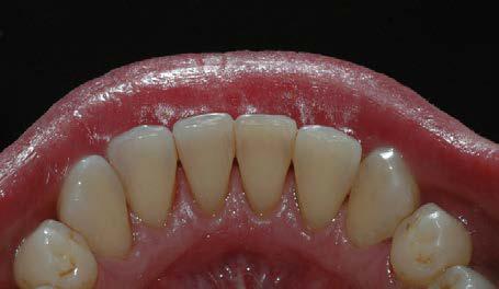 Etter puss og polering har tennene fått tilbake sin rene, glatte overflate.