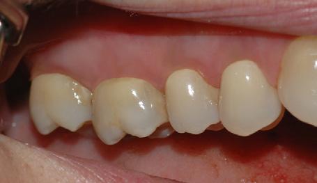 Bildet viser tenner i overkjeven med normale tannkjøttsforhold.