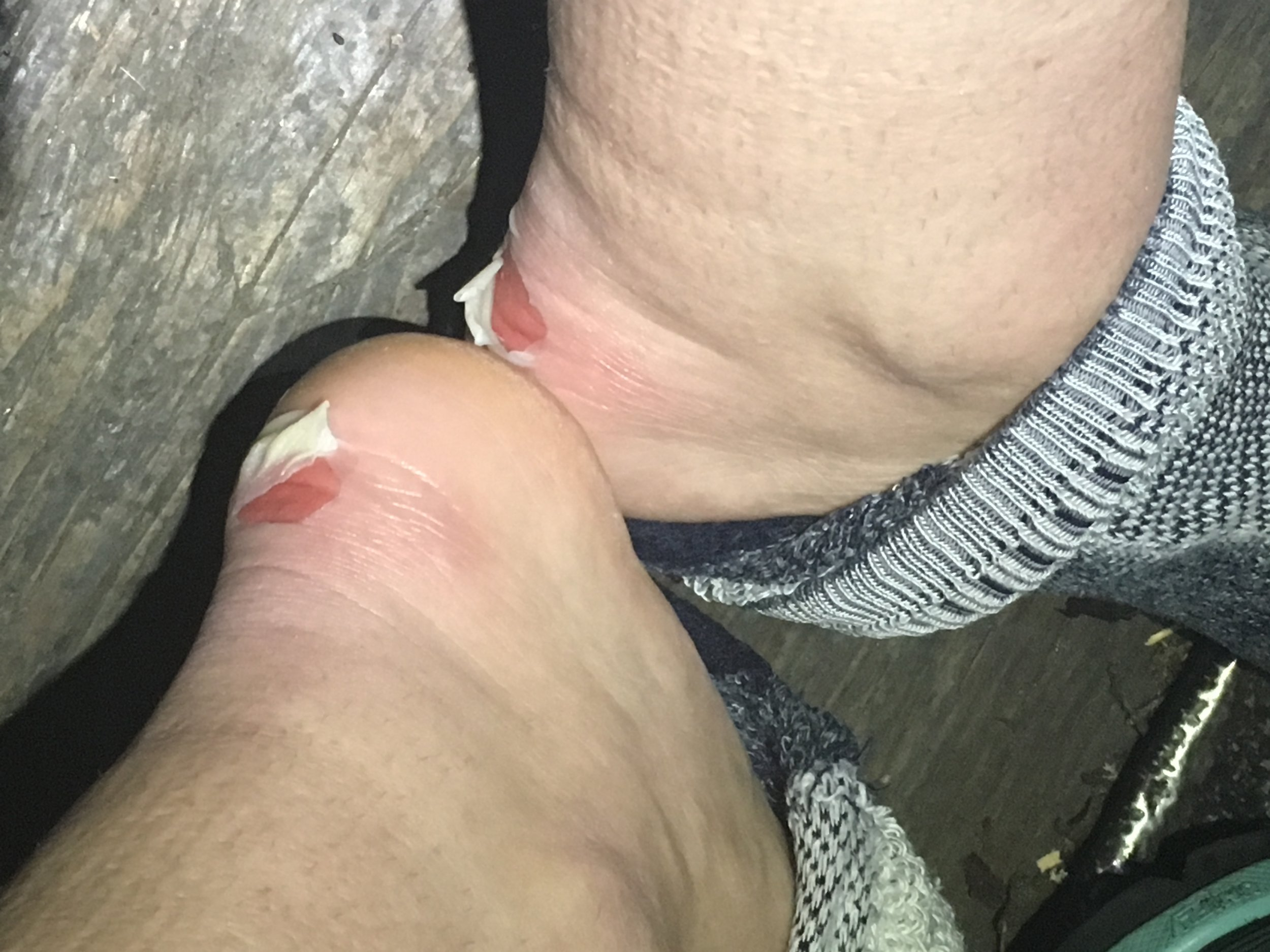 Hiking with blisters sucks
