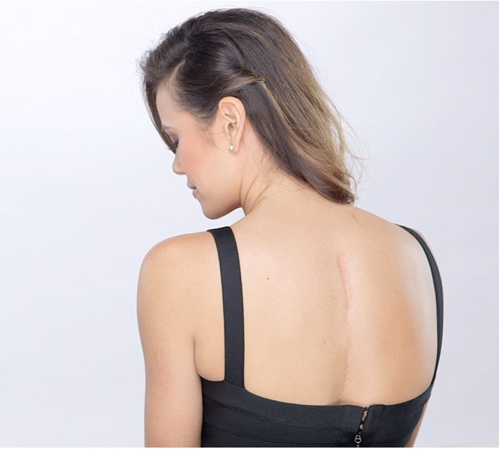 scoliosis scar pic.jpg