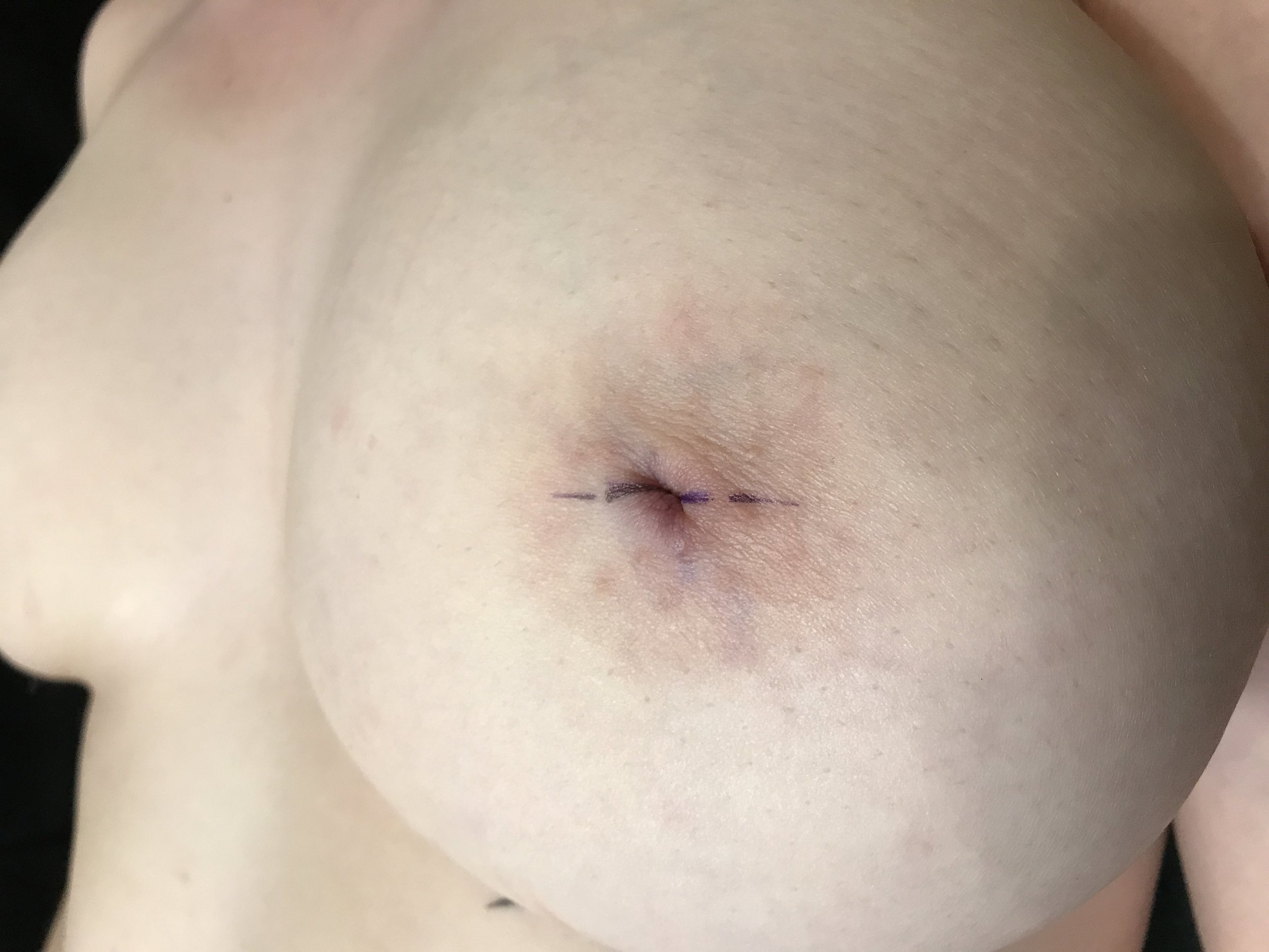 Inverted nipple prior to piercing