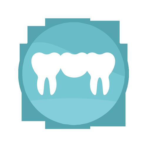 Bridge Procedure | Summit Family Dental, Ankeny, Iowa
