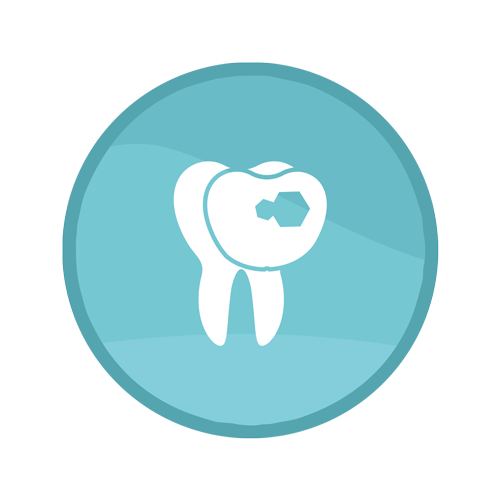 Veneer Procedure | Summit Family Dental, Ankeny, Iowa