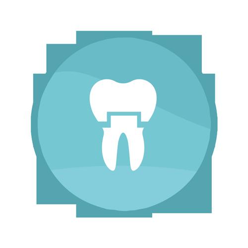 Crown Procedure | Summit Family Dental, Ankeny, Iowa