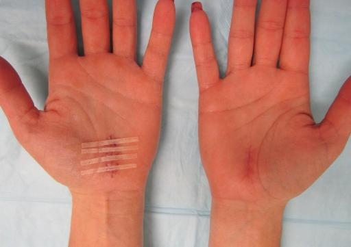 Carpal tunnnel surgery