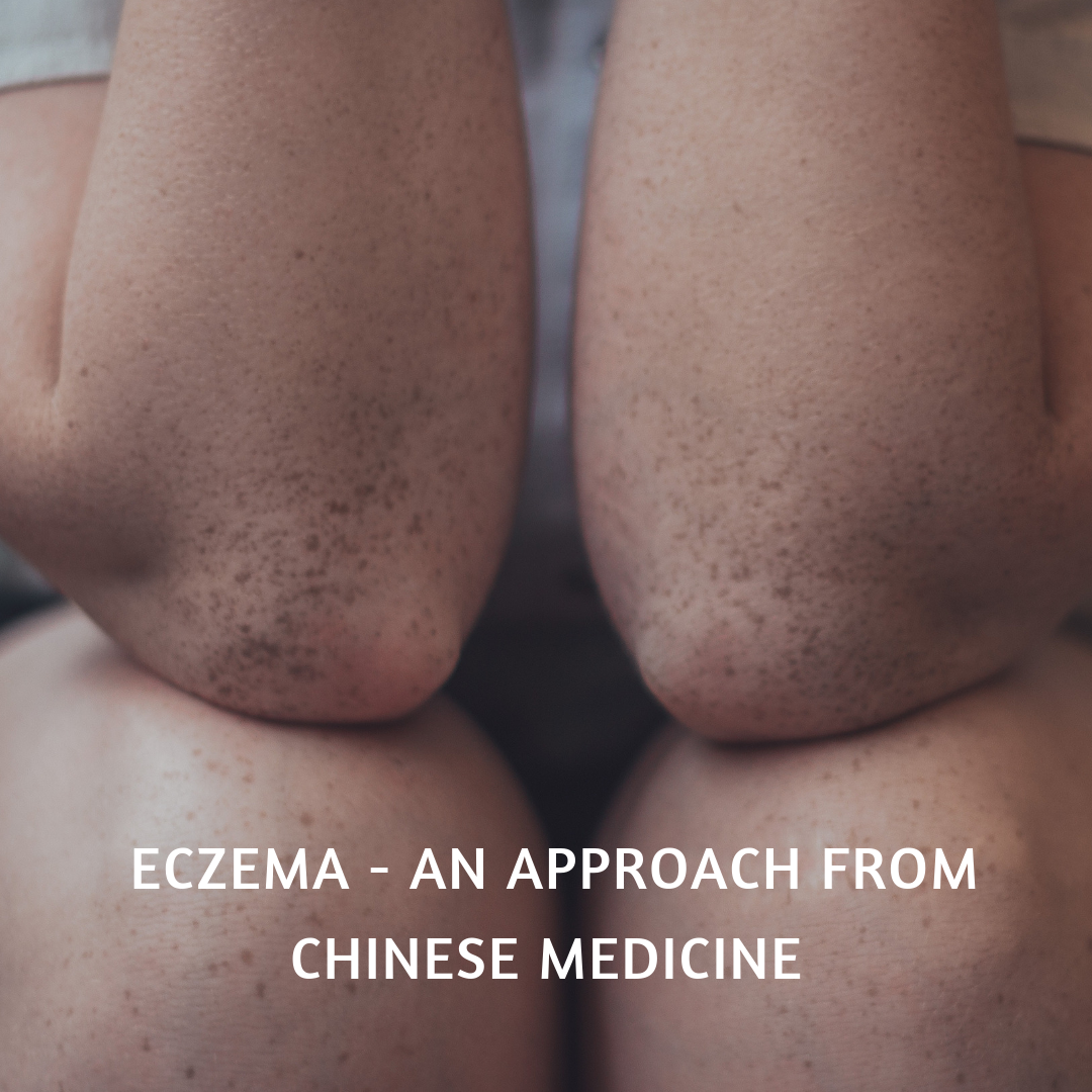 Eczema - An Approach From Chinese Medicine