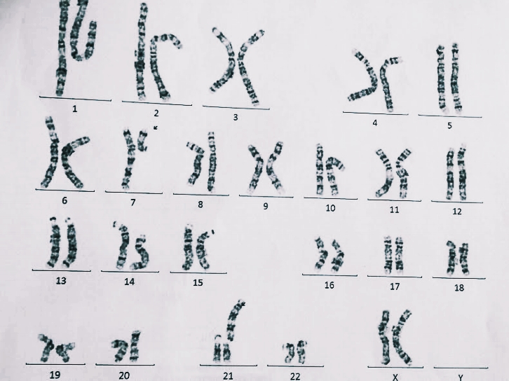 Alicia's chromosmal analysis