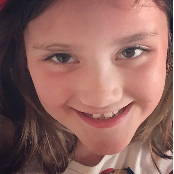 """Amy Willers, CT - Today we decided we love Audrey's right eyebrow even more than the other one. But it didn't start that way. She was playing with make-up when all of a sudden she said, """"I don't like my eyebrow because of the bald spot from the scar."""" This simple statement hit me in the gut. It was the first time I had heard her look in the mirror and state something she didn't like about herself. I'm not saying it's never happened, although I pray it hasn't before, but it was the first time I had heard it. And then I said something that I truly believe was straight from God. """"What? That eyebrow is my favorite because it tells a story! A story of heroism and bravery."""" She looked at me like I was crazy so I explained: it's the story of a little girl who got hurt and had to be sewn up, with needle and thread, who was so scared, but bravely let the doctors work to sew her eyebrow back together. And then I showed her how she could fill it in with eyebrow pencil. But you know what? She rubbed it off and said she liked it better without."""