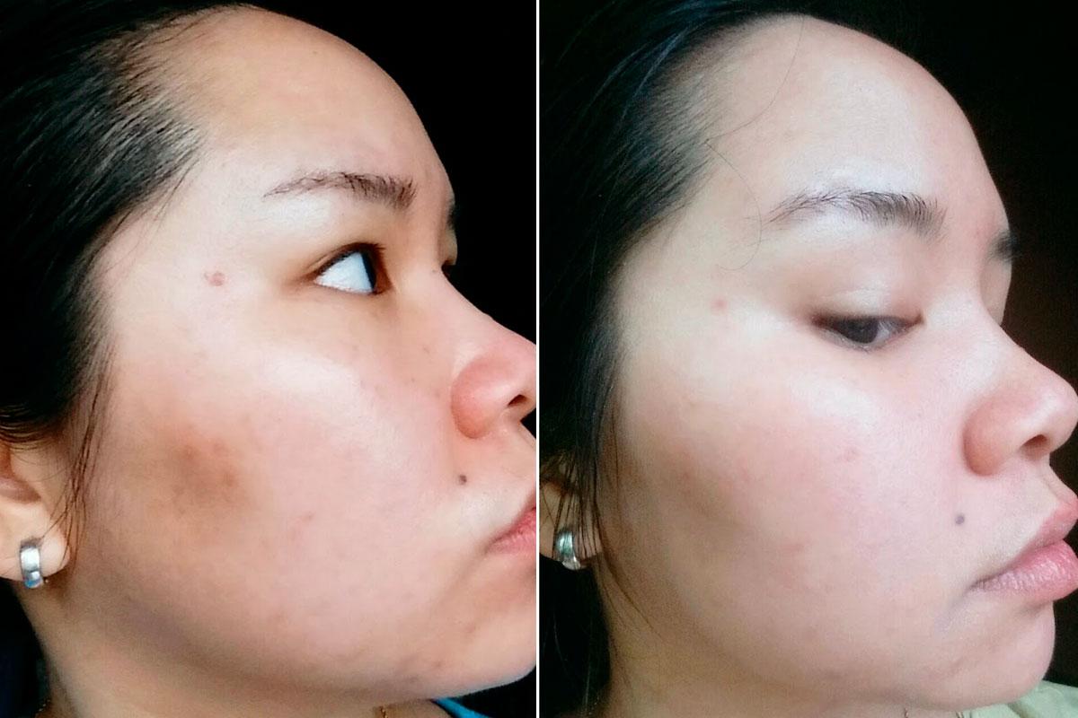 El antes y el después. Imagen de www.holysnails.com