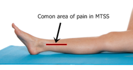 Shin Pain And Medial Tibial Stress Syndrome An Update East Vic Park Physiotherapy