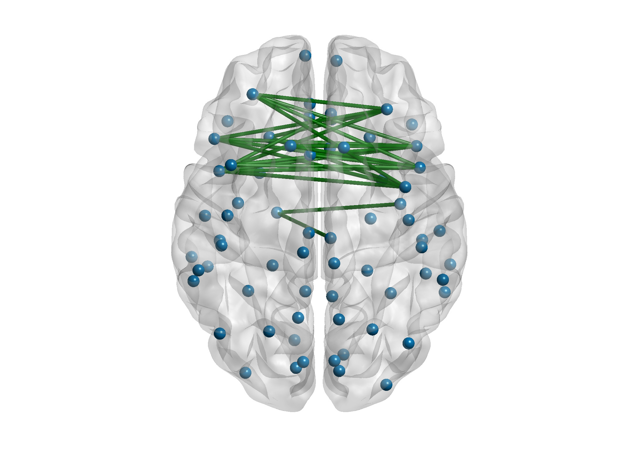 brain- white matter connections.jpg