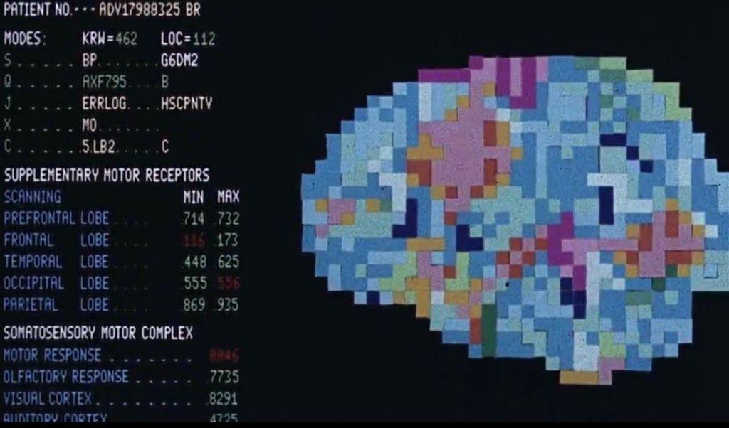 brain-massage