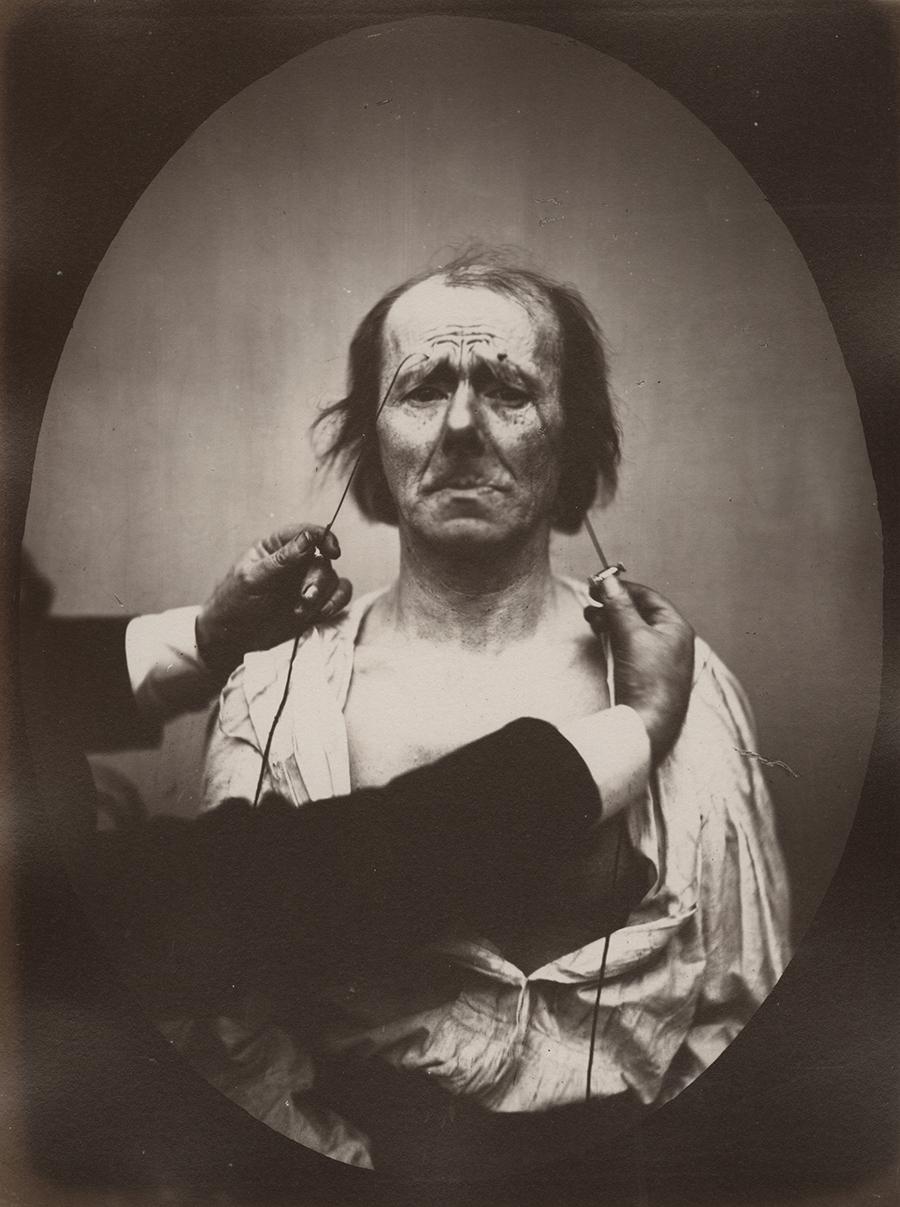 Duchenne de Boulogne and Adrien Tournachon (French, 1806-1875 & 1825-1903) Profound suffering, with resignation,  1862, Negative, circa 1856.Courtesy of Hans P. Kraus Jr. Fine Photographs.