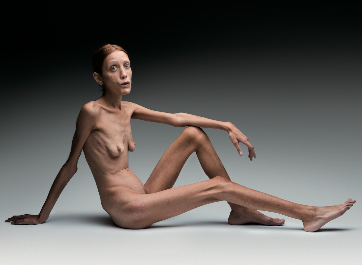 ©Oliviero Toscani.  Anorexia . Courtesy of Andrea Blanch