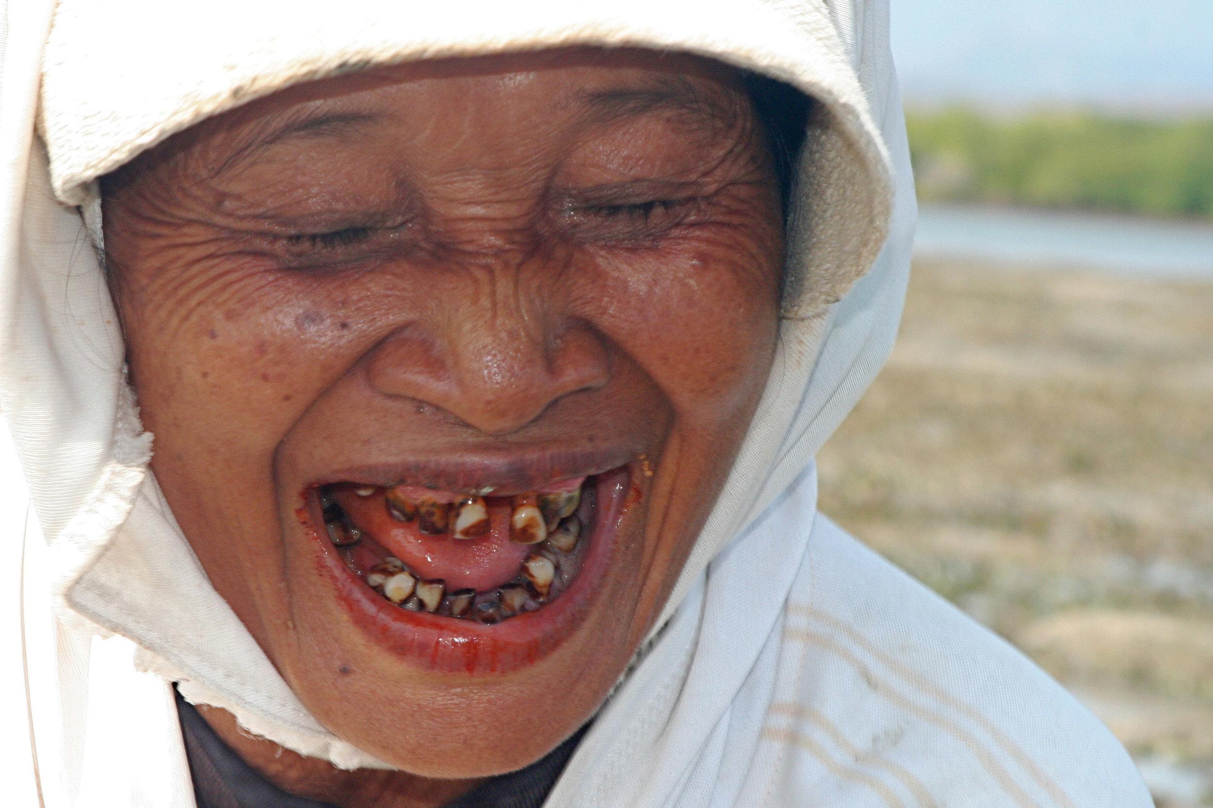 bali_teeth.jpg