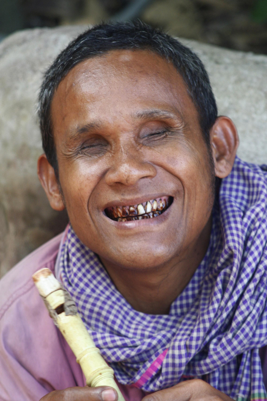 cambodia_blind_baby.jpg