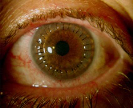 Cornea with stitches, post transplant