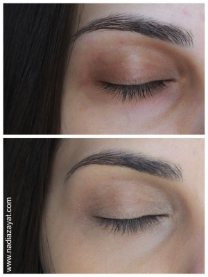 Above: Before applying the concealer (bare skin) Below: I've applied only a concealer (no colour correction)