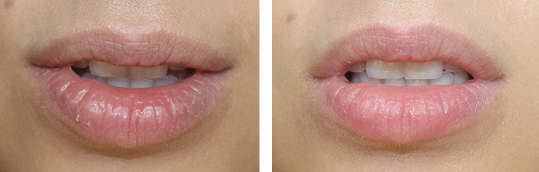 Left: My lips before to exfoliate them; Right: My lips after exfoliating them;