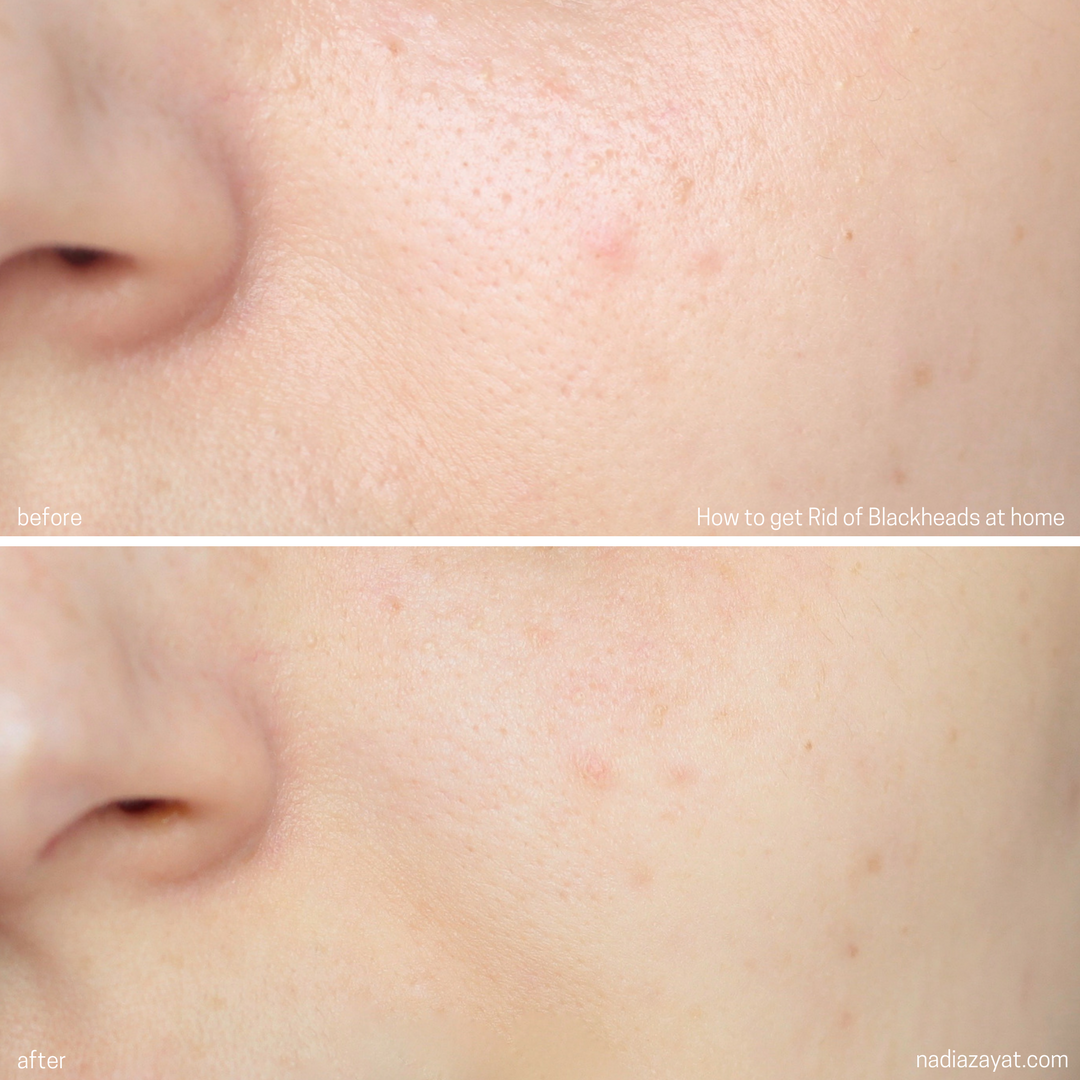 get rid of blackheads on the nose