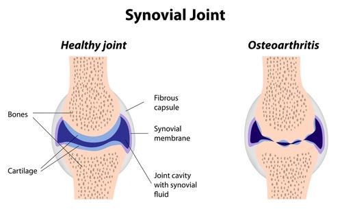 Osteoarthritis joint.jpg