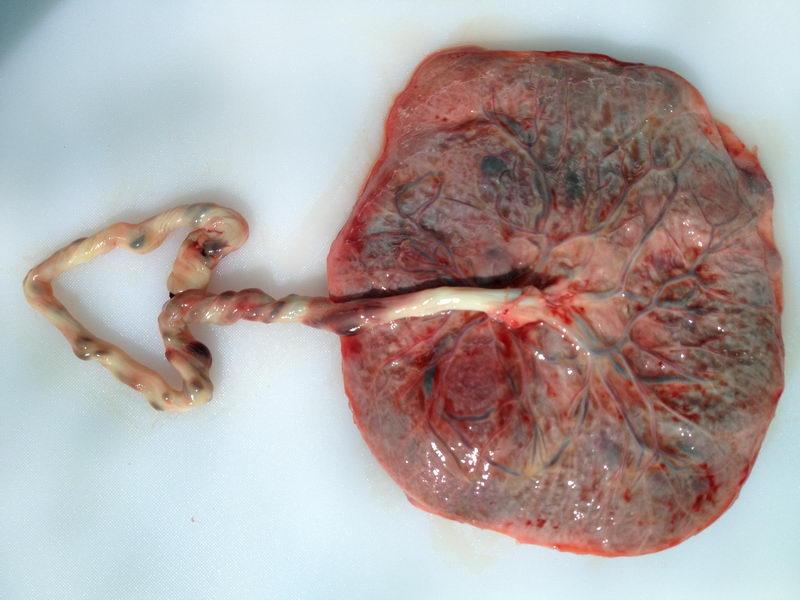 A placenta before encapsulation