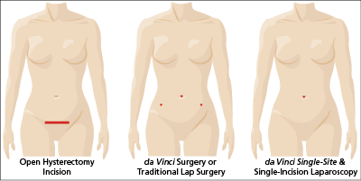 know your Hysterectomy Options: the most common ways to remove your uterus are: open surgery and minimally invasive surgery (traditional laparoscopy or robotically-assisted da Vinci Surgery).