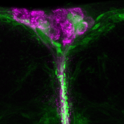 We investigate how adipokines regulate fat sensing neurons (green).