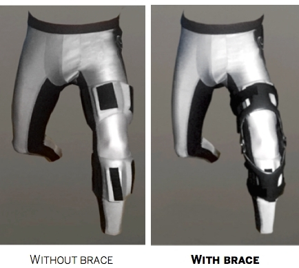 Anterior view, left leg forward showing the Interface Baselayer without a functional brace (left), and with a functional Ossur CTi brace (right)