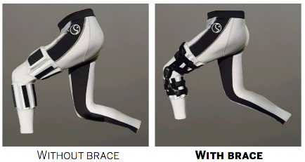 Lateral View without brace (left), with a DonJoy ACL Brace (right)