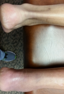Achilles Tendon Injury (bottom)